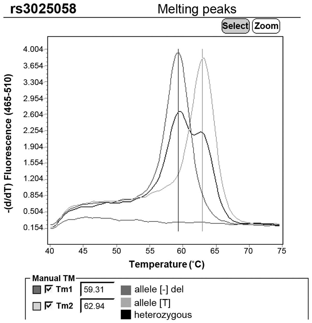 Matrix metalloproteinase‑3 gene promoter polymorphisms  A potential ... 5570e9cf461
