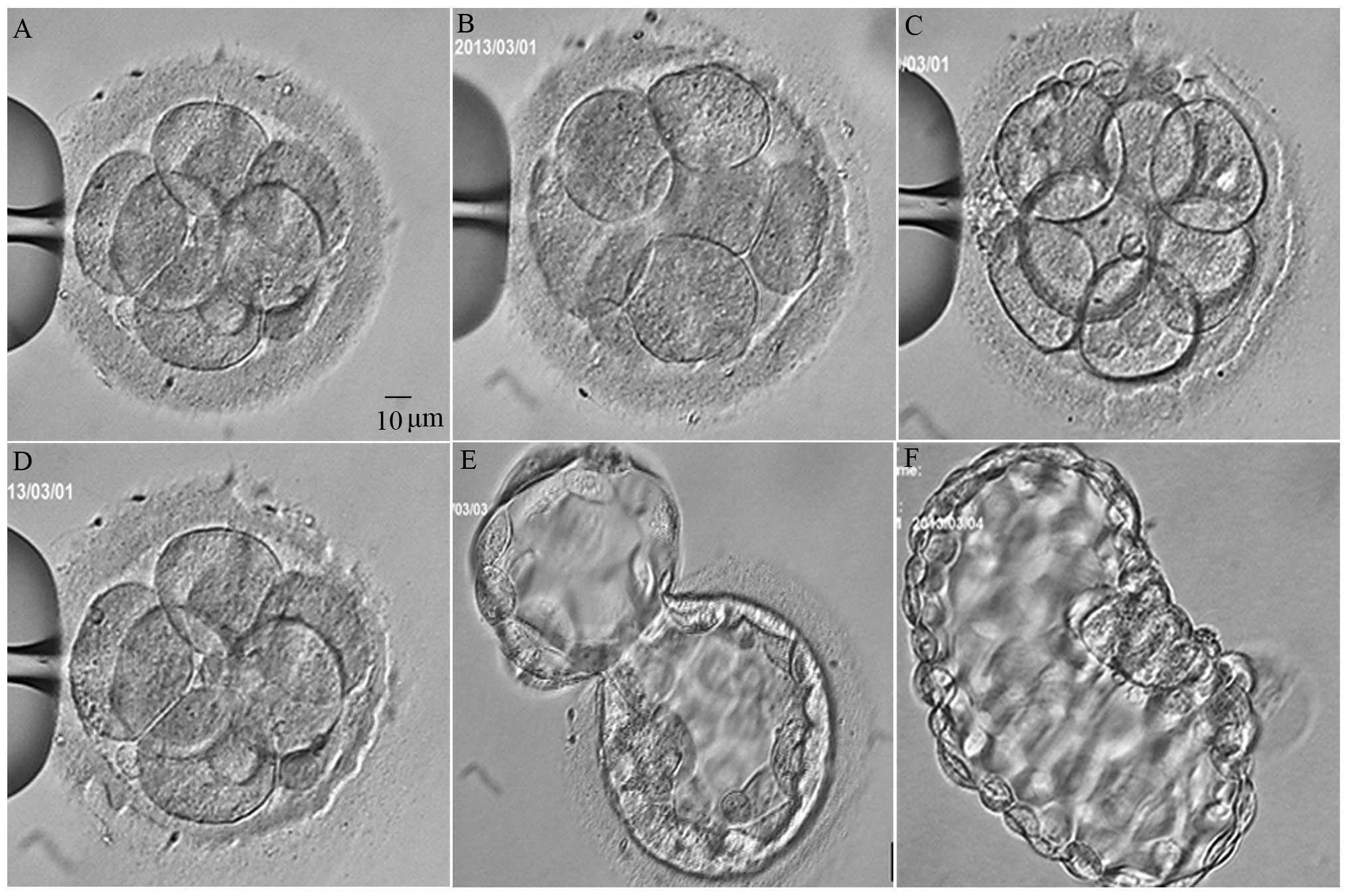 Outcomes of vitrified-warmed cleavage-stage embryo hatching after in