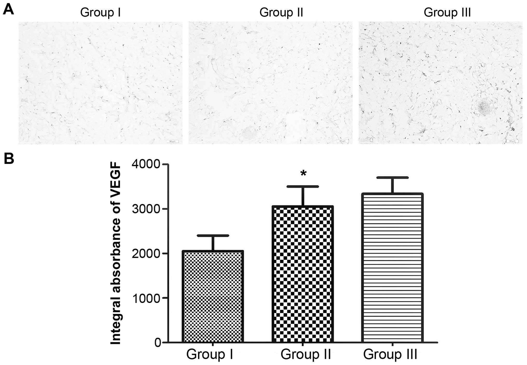 Effects of diammonium glycyrrhizinate on random skin flap survival a comparison of vegf expression in the intermediate areas area ii of the three groups the sections were observed under a microscope magnification ccuart Gallery