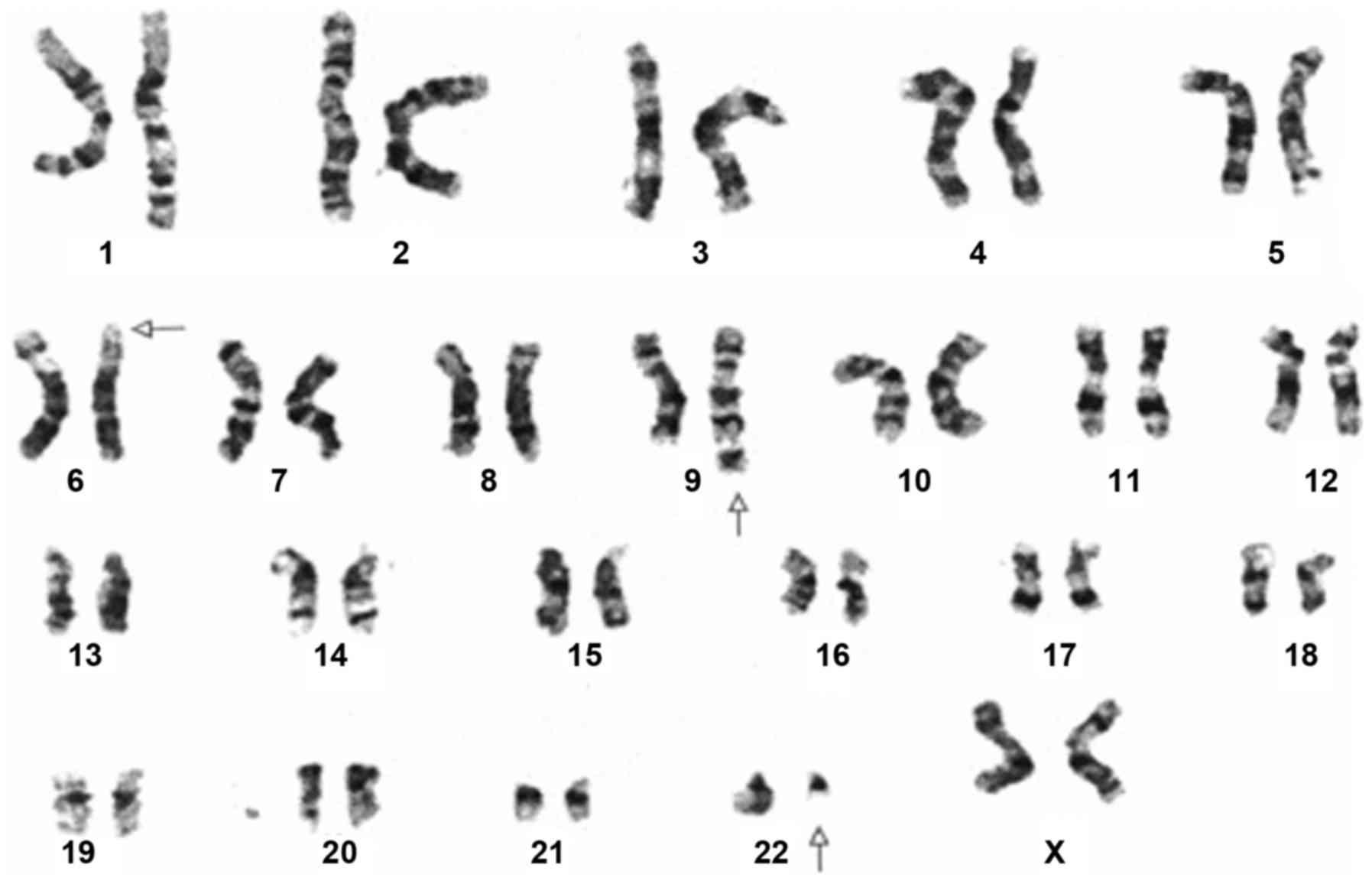 Cytogenetic Analysis Shows A Variant Three Way Translocation 46XXt6922p21q34q11 Arrowheads Highlight All The Derivative Chromosomes