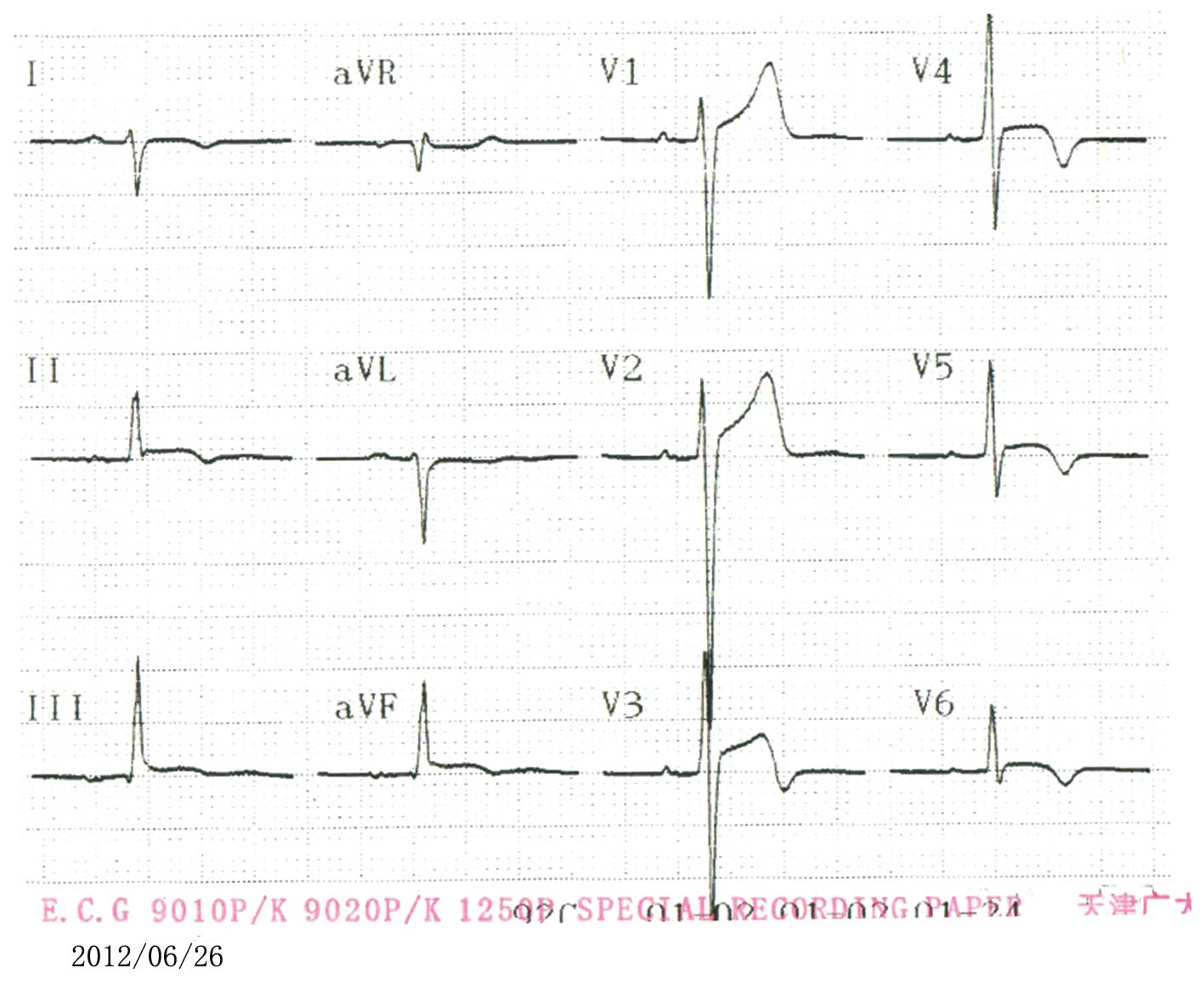 Acute Myocarditis Mimicking St Elevation Myocardial Infarction A Cde Ham Iii Wiring Diagram Review Of The Electrocardiogram On Ninth Day Demonstrated That Elevated Segment In Leads Ii And Avf Had Fallen Back To Baseline Level
