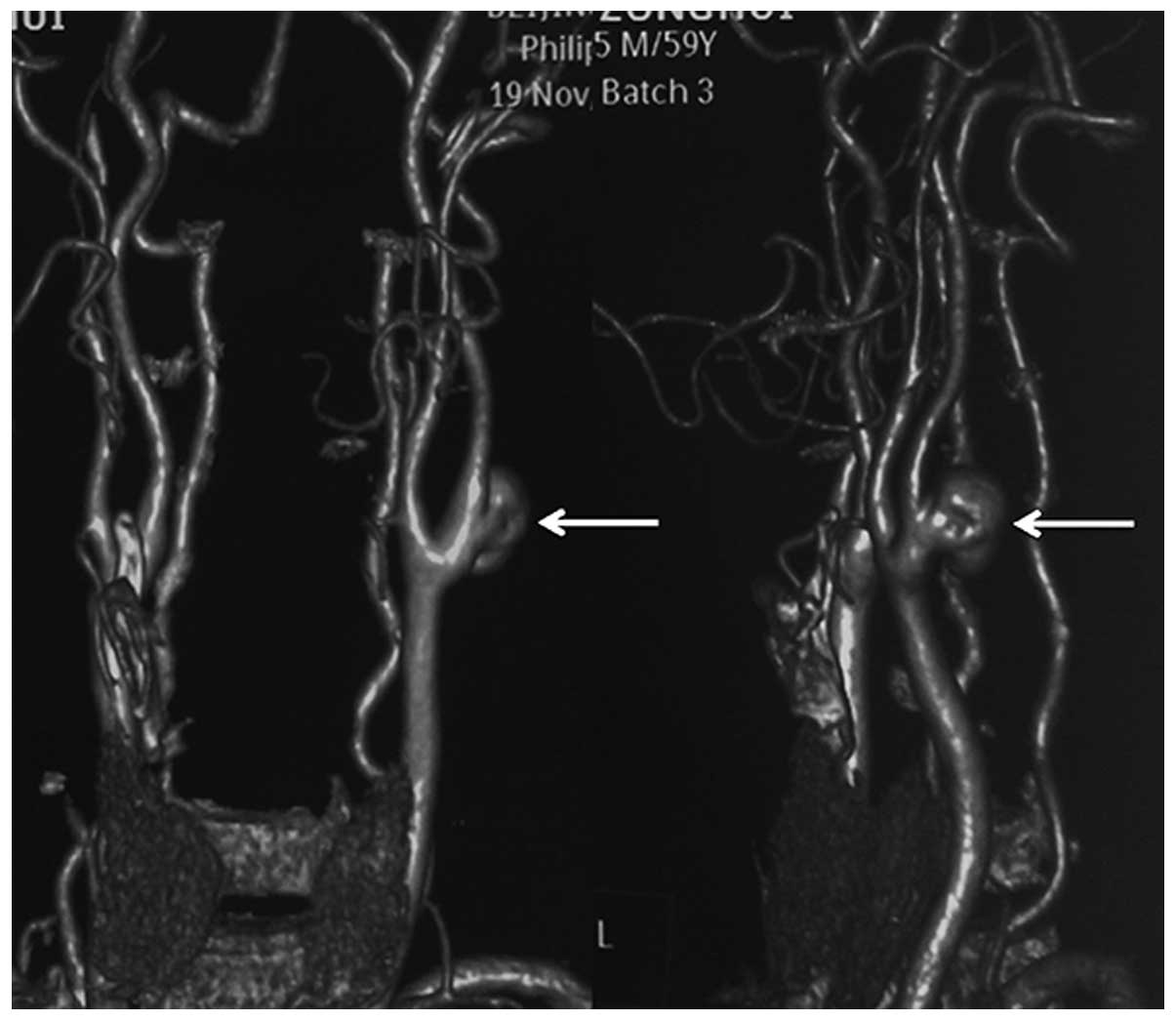 Management of extracranial carotid artery aneurysm: A report of ...