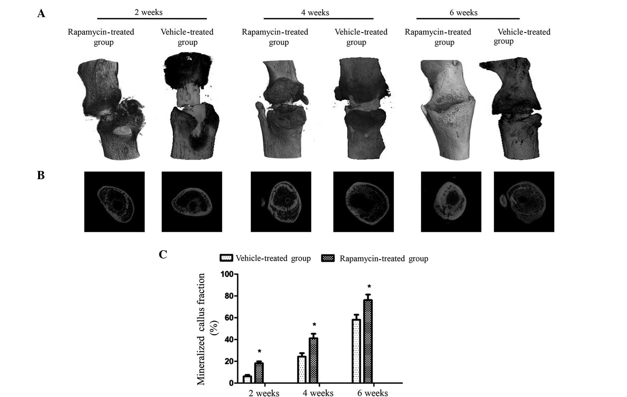 rapamycin-induced autophagy activity promotes bone fracture, Muscles