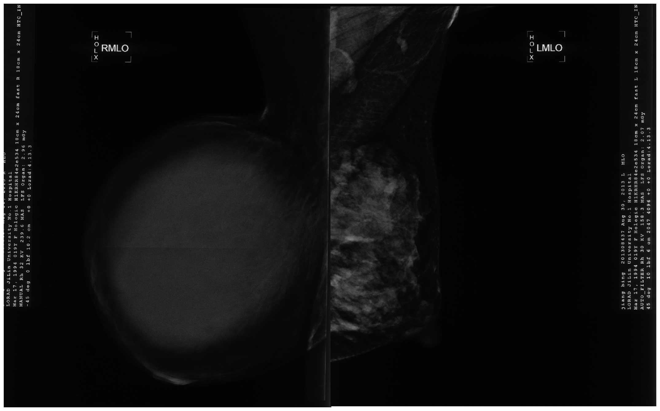 ganglioneuroblastoma during pregnancy case report News & updates ncbi:  management of a multiple endocrine neoplasia type 1 during pregnancy: a case report and review of the  (nb), ganglioneuroblastoma.