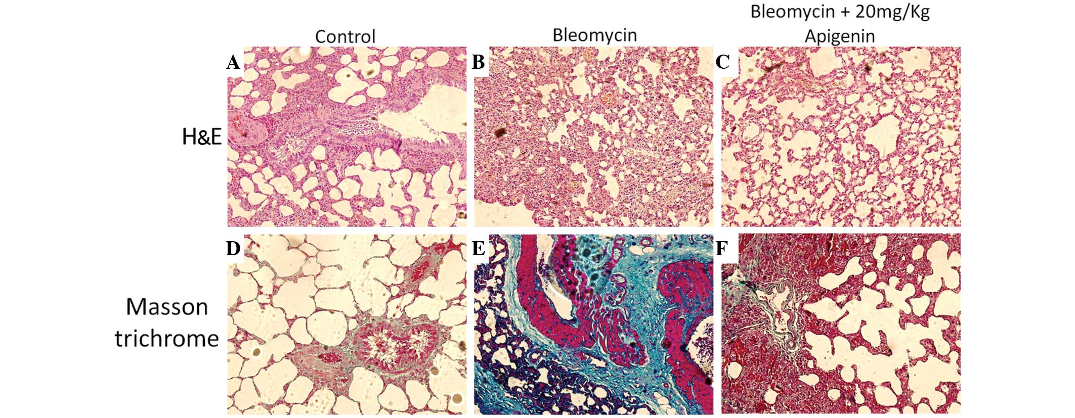 Apigenin protects against bleomycin‑induced lung fibrosis in rats