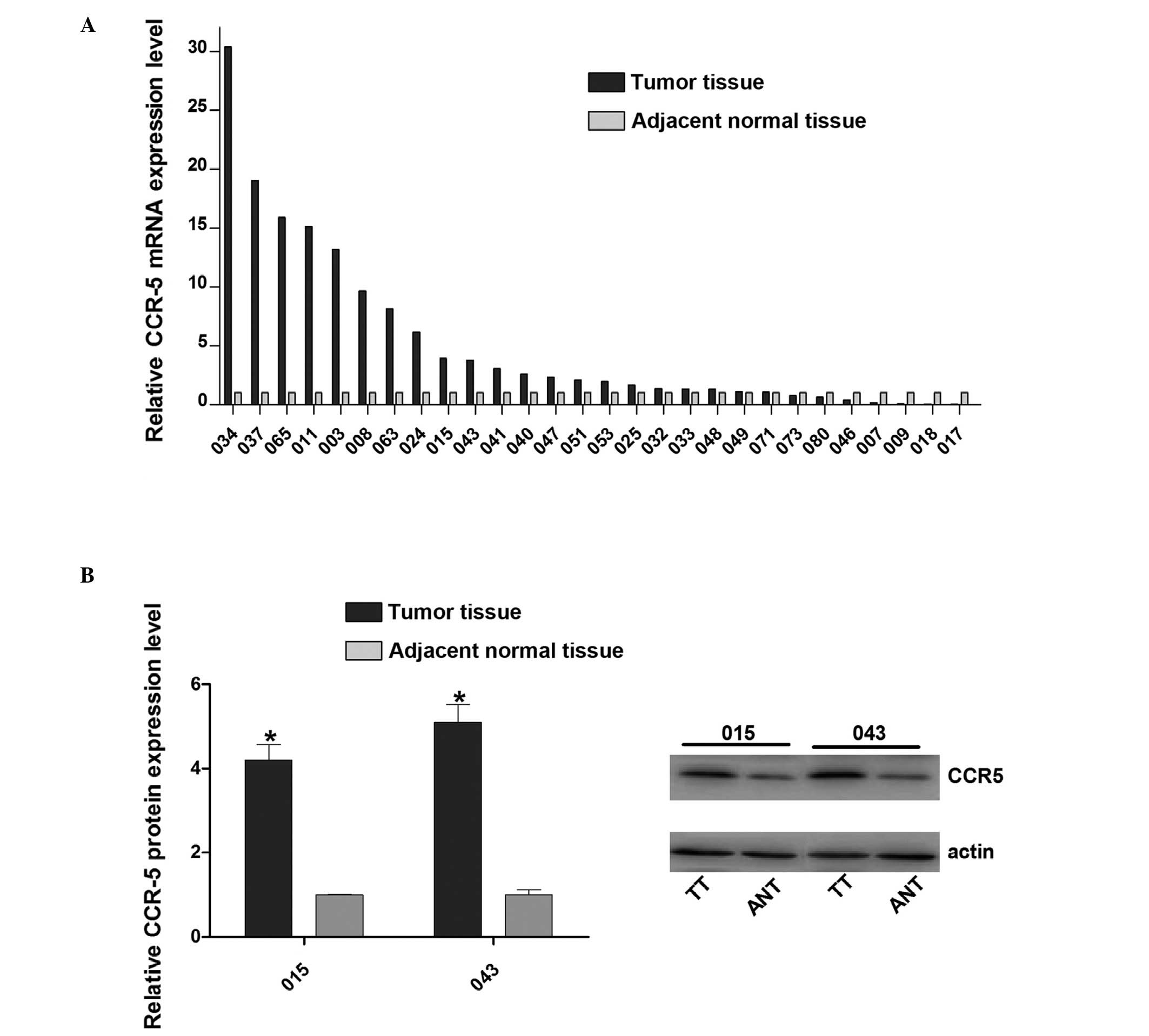 Experimental and Therapeutic Medicine Downregulation of CCR5 inhibits the proliferation and invasion of cervical cancer cells and is regulated by microRNA-107