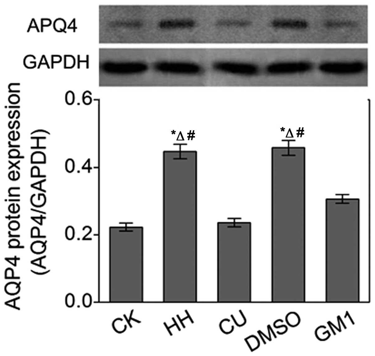 Curcumin alleviates brain edema by lowering AQP4 expression levels