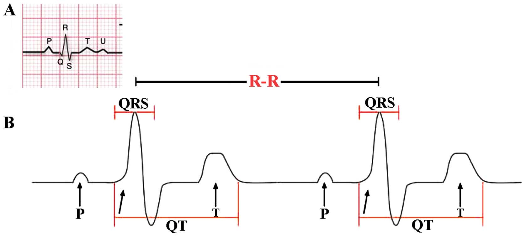 The role of heart rate variability in sports physiology (Review)
