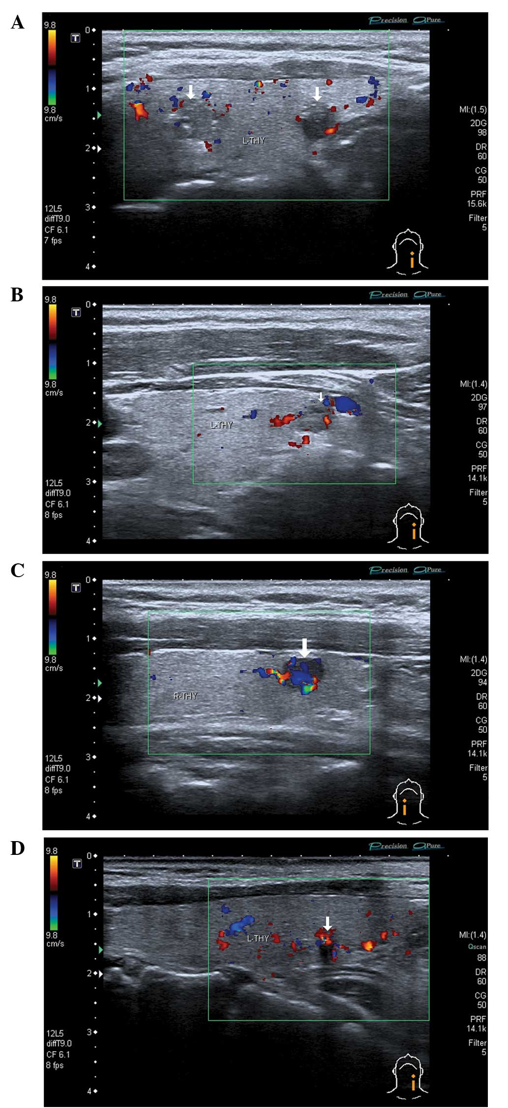 Diagnostic Value Of Contrast Enhanced Ultrasound In Papillary