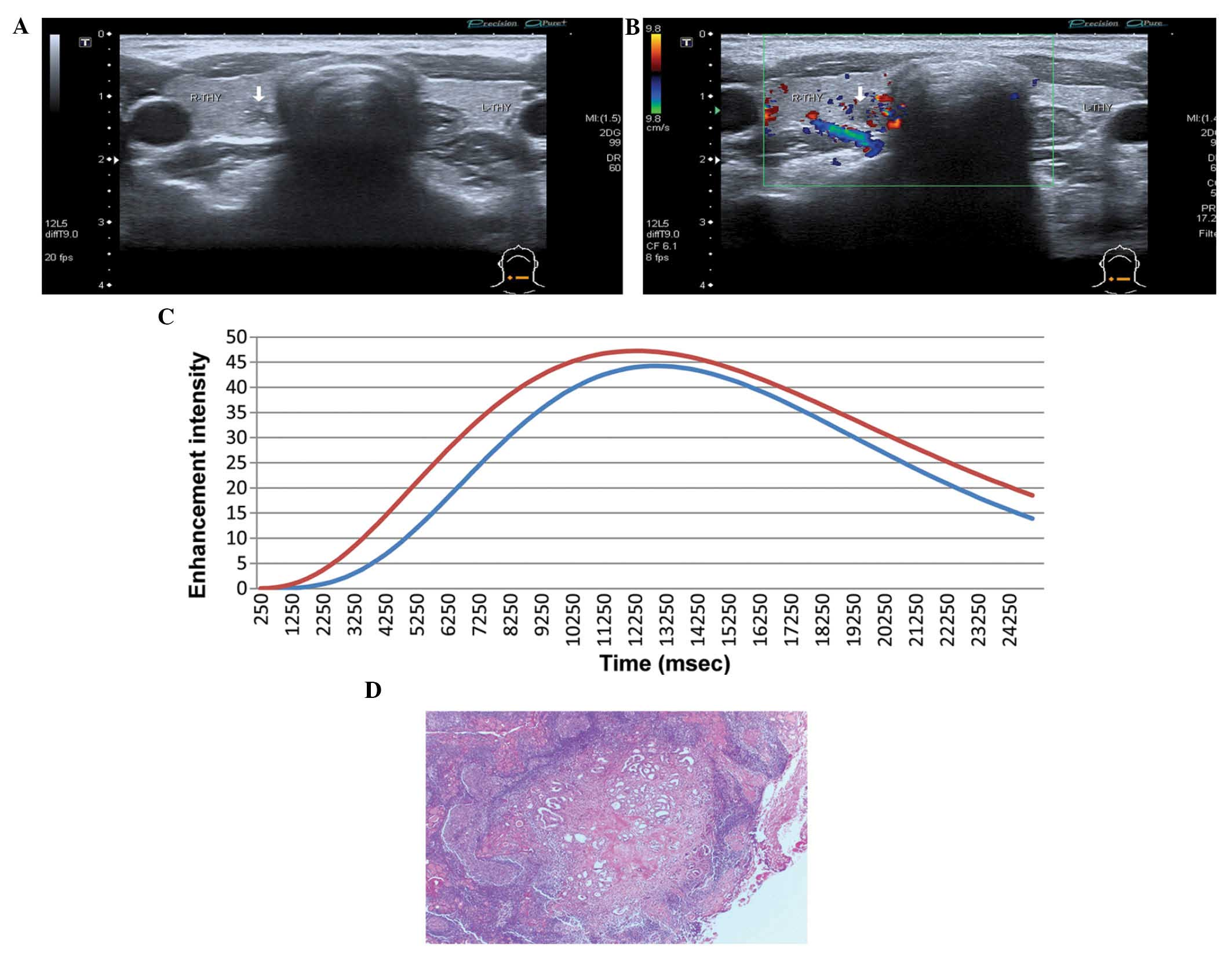 Diagnostic Value Of Contrast Enhanced Ultrasound In Papillary Thyroid Microcarcinoma