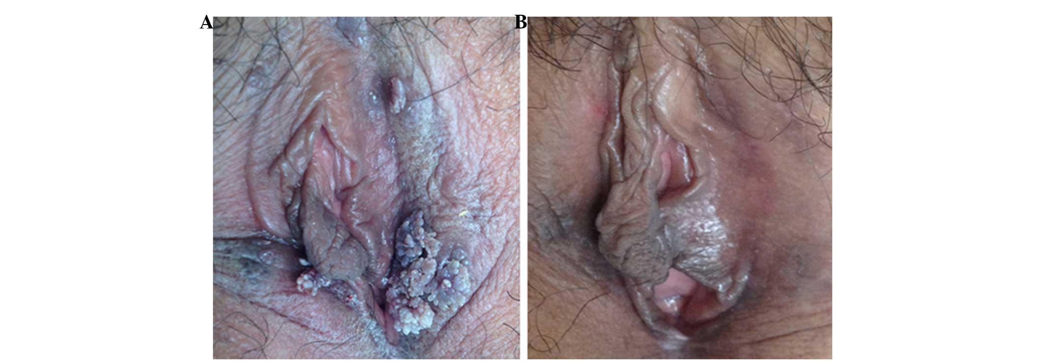 condyloma acuminata laser treatment