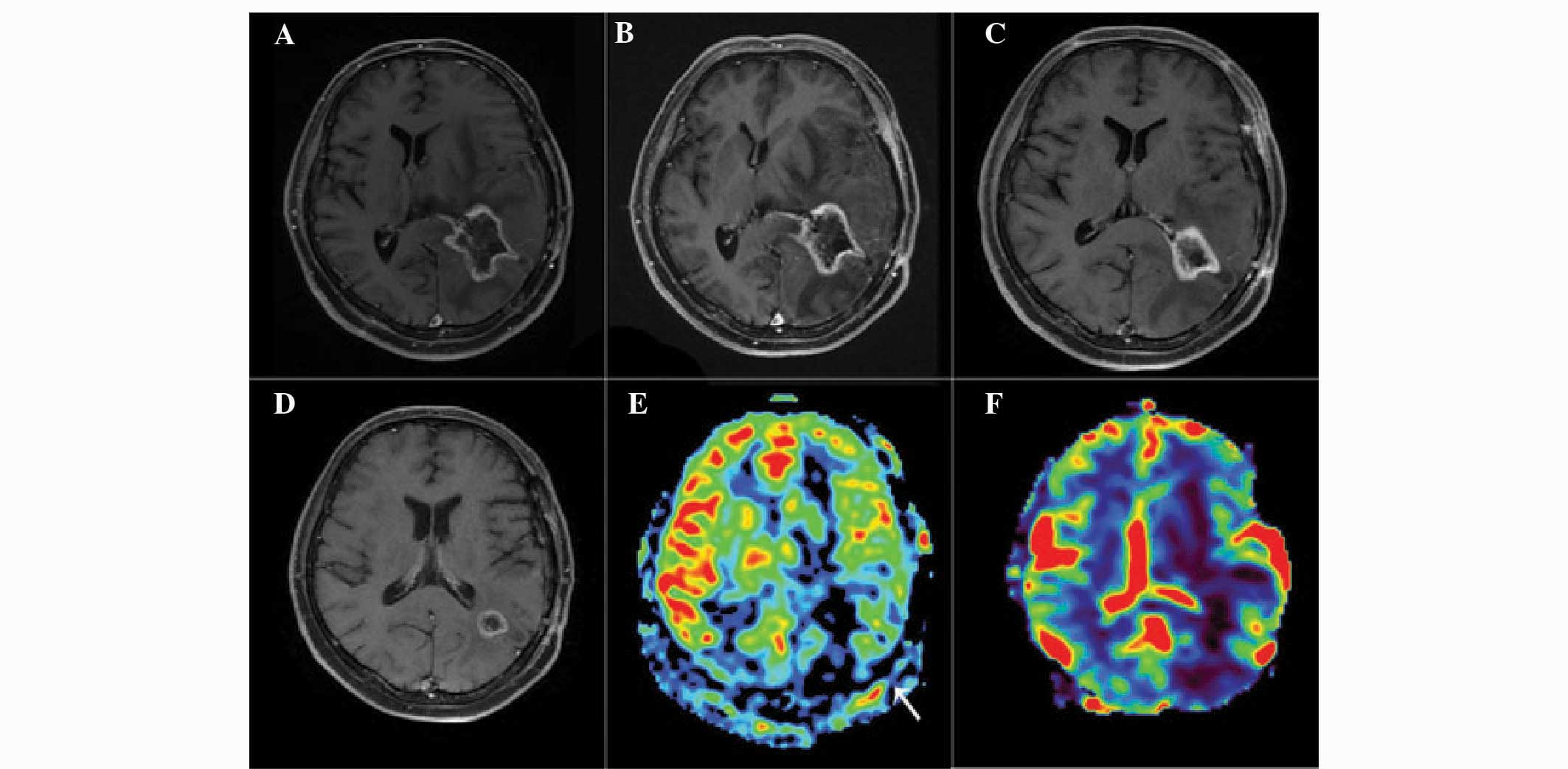 Blood mri t1 weighted The Usefulness