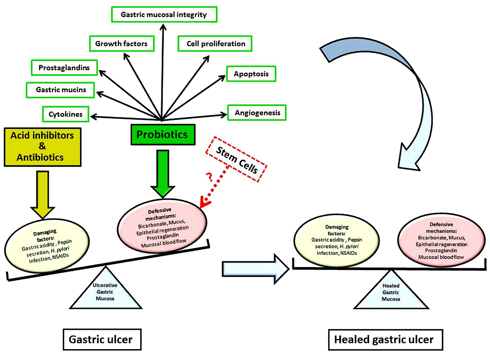 Potential role of probiotics in the management of gastric ulcer ...