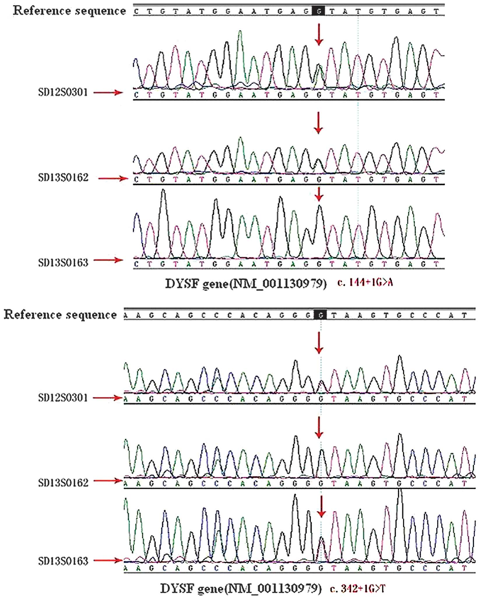 Sequence maps of the patient and the patient's mother and sister by exon  trapping and sequence analysis. SD13S0301, patient; SD13S0162. patient's  sister; ...