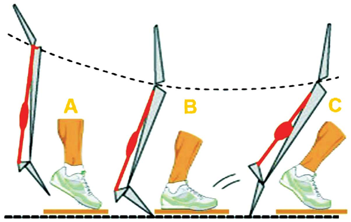 effects of plyometric trainings Effects of dynamic resistance training on fascicle length and muscle  effects of plyometric training and recovery on  trainings mit zusatzlasten.