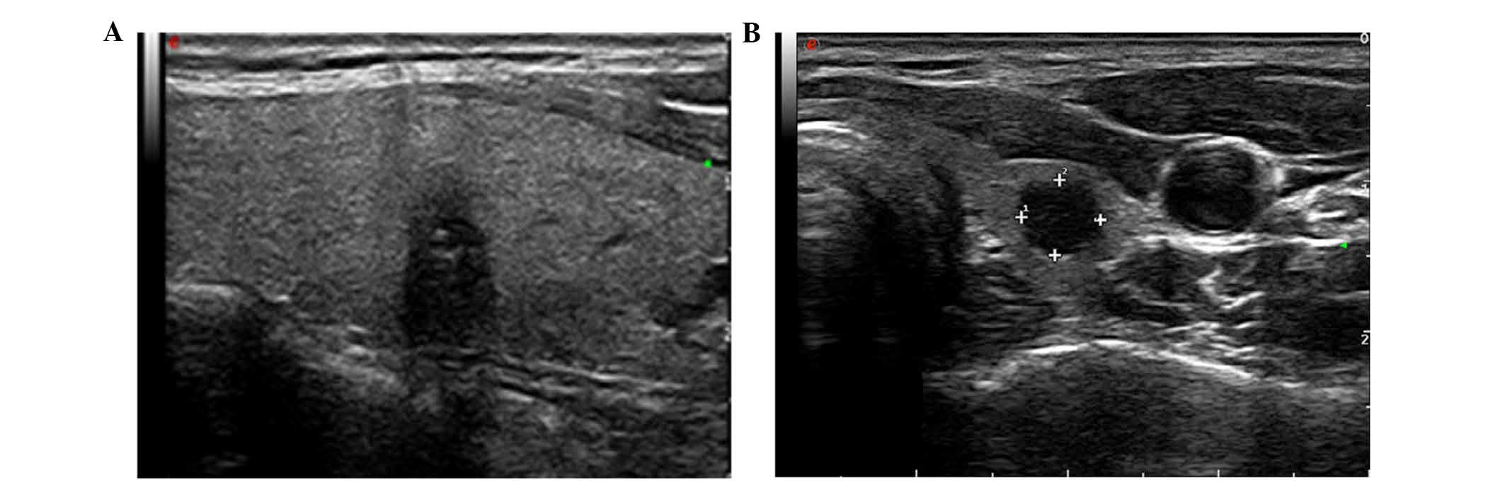 Contrast Enhanced Ultrasound And Real Time Elastography In The