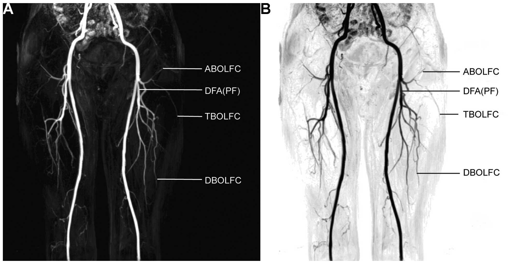 Three Dimensional Contrast Enhanced Magnetic Resonance Angiography