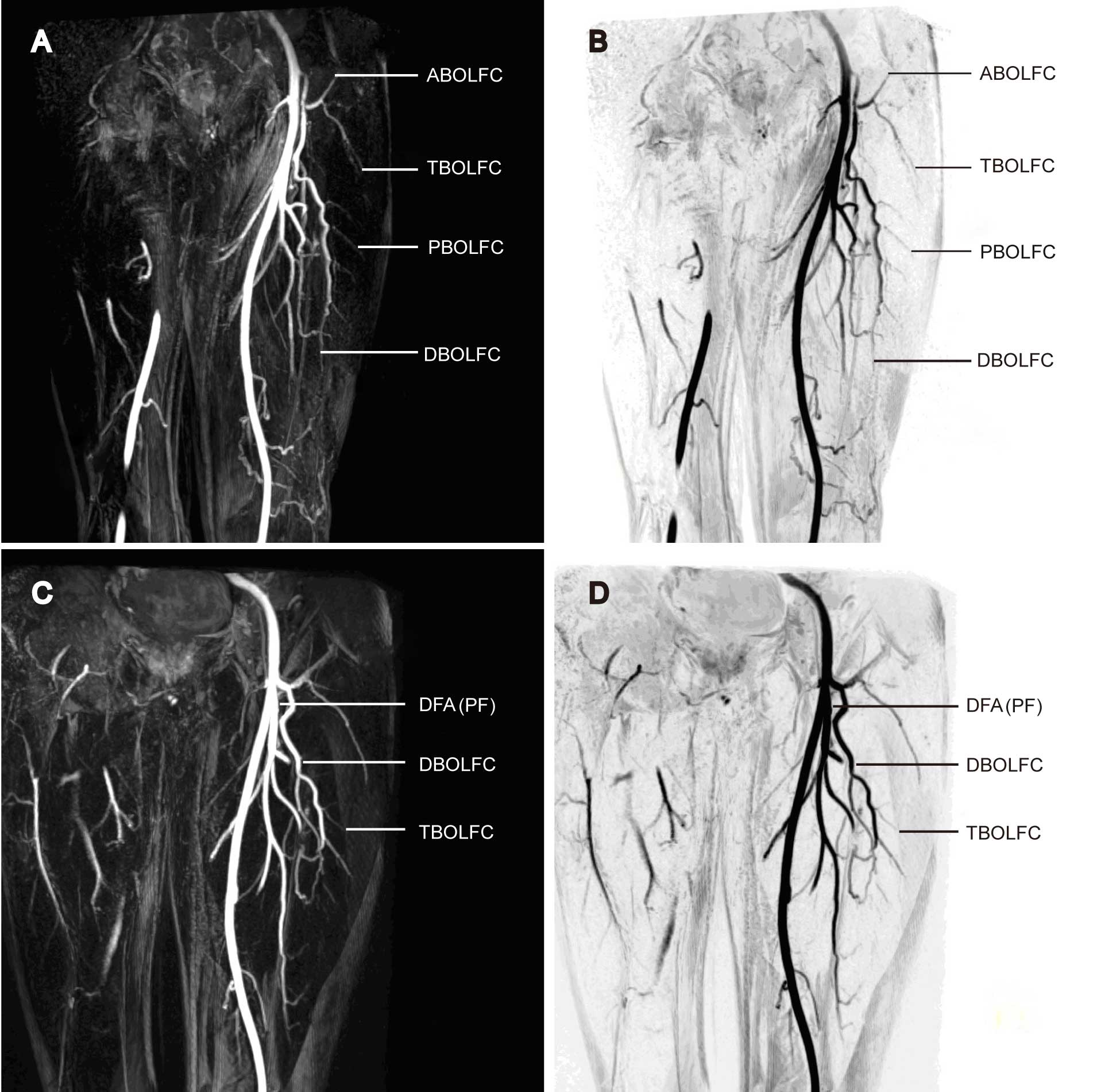 Three-dimensional contrast-enhanced magnetic resonance angiography ...