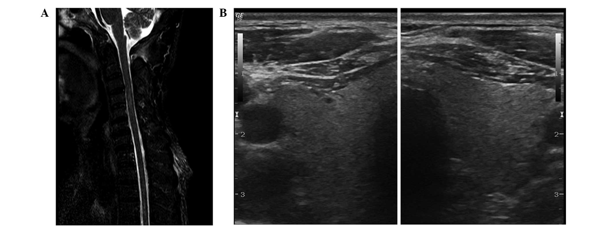 Acute transverse myelitis and subacute thyroiditis