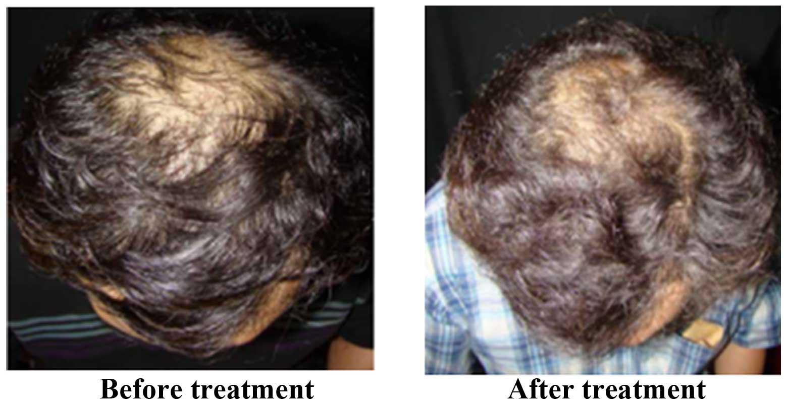 carnitine hair treatment
