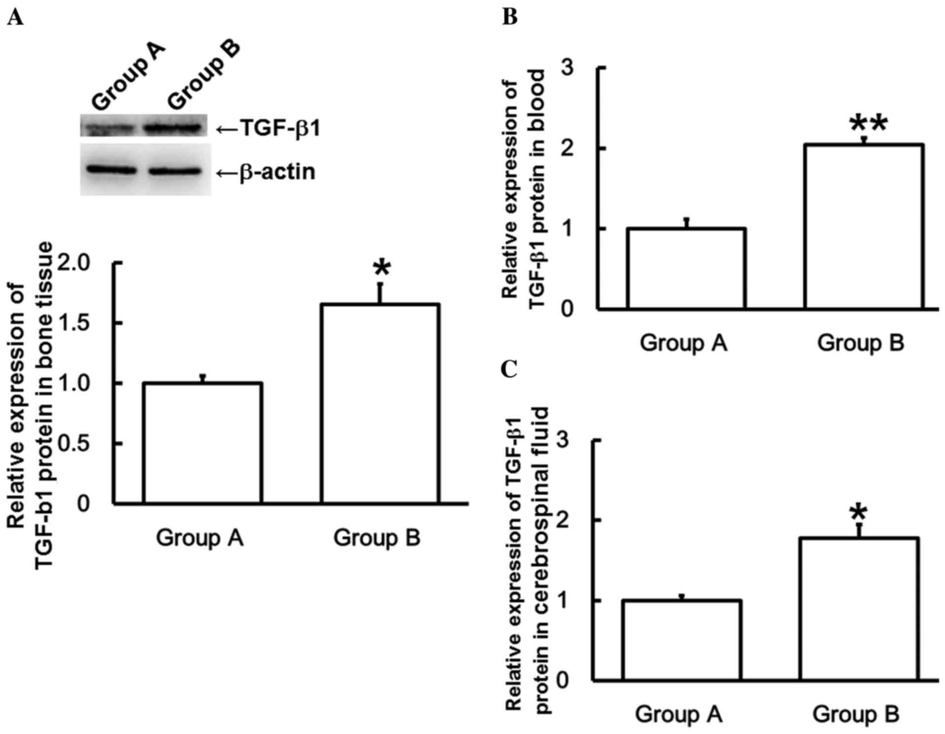 microrna u2011185 regulates spinal cord injuries induced by thoracolumbar spine compression fractures