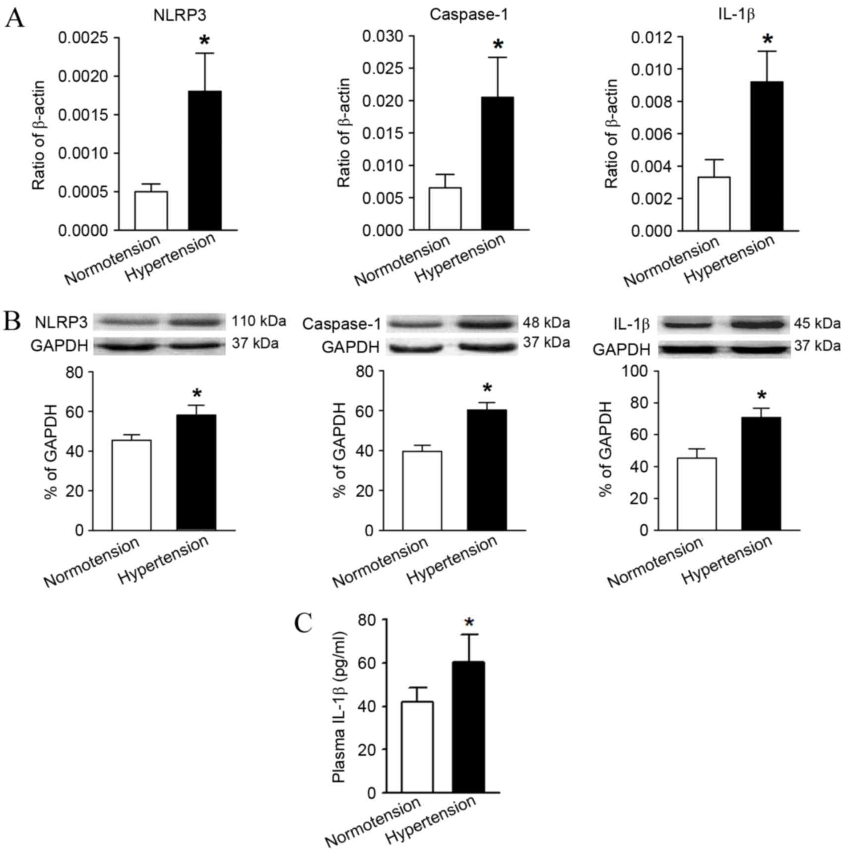 T Lymphocyte Kv13 Channel Activation Triggers The Nlrp3 Diagram Of Bridge Components Bing Images Figure 3 Comparison Expression Levels Molecules Associated With Inflammasome Pathway And Its Downstream Product Il 1
