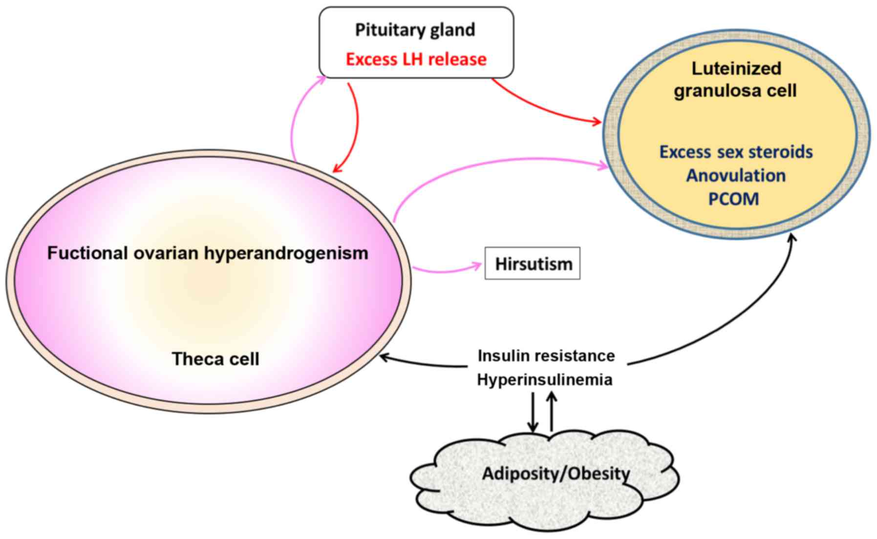 Association of polycystic ovary syndrome with metabolic