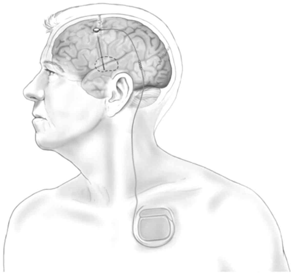 Advanced Research On Deep Brain Stimulation In Treating Mental Alternative To Drugs As Treatments Electrical Energy Pulses Tr The Stimulating Electrode Is Implanted By Stereotactic Neurosurgery And Connected A Subcutaneous Pulse Generator With Wire This Image Provided