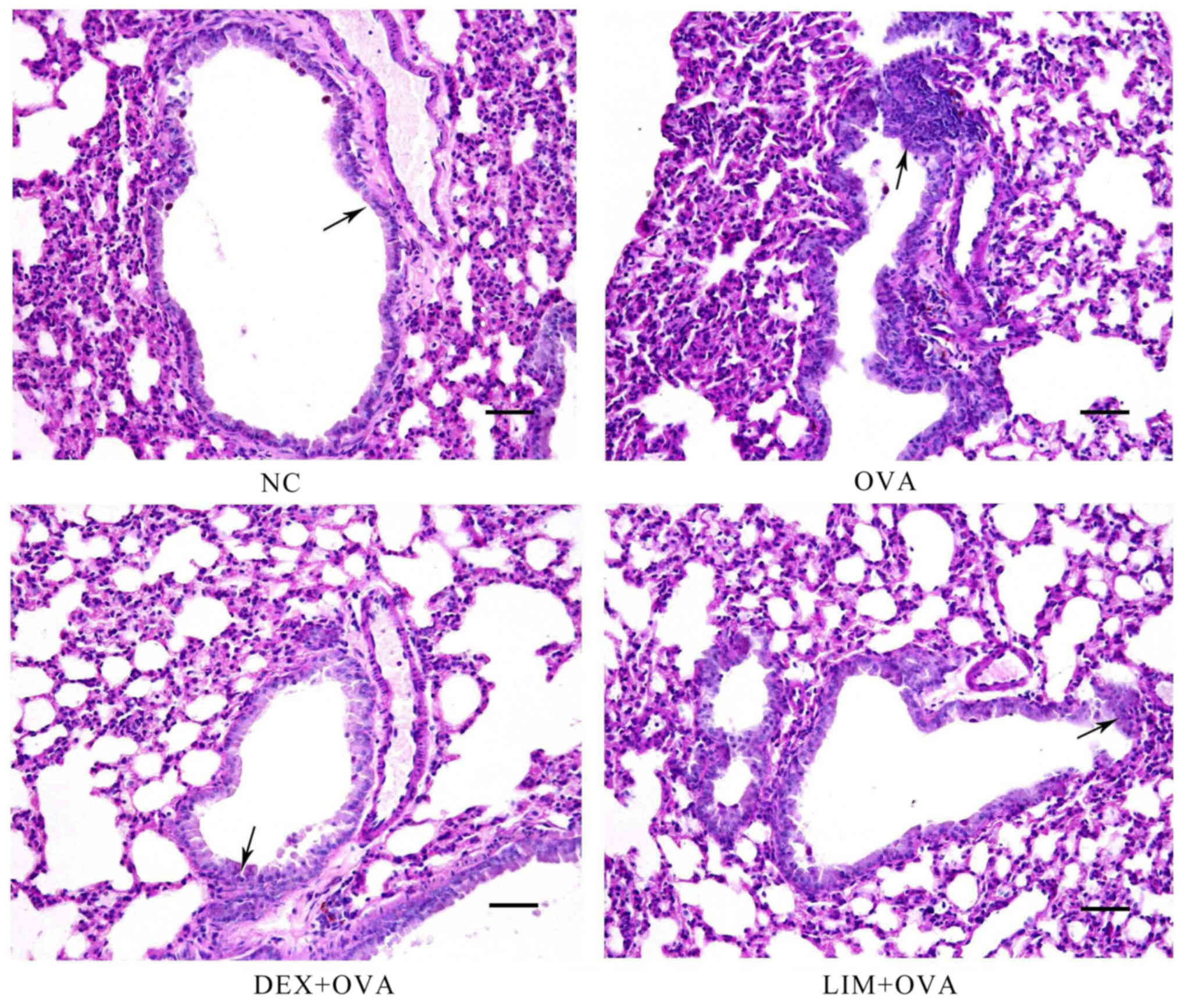 Limethason reduces airway inflammation in a murine model of