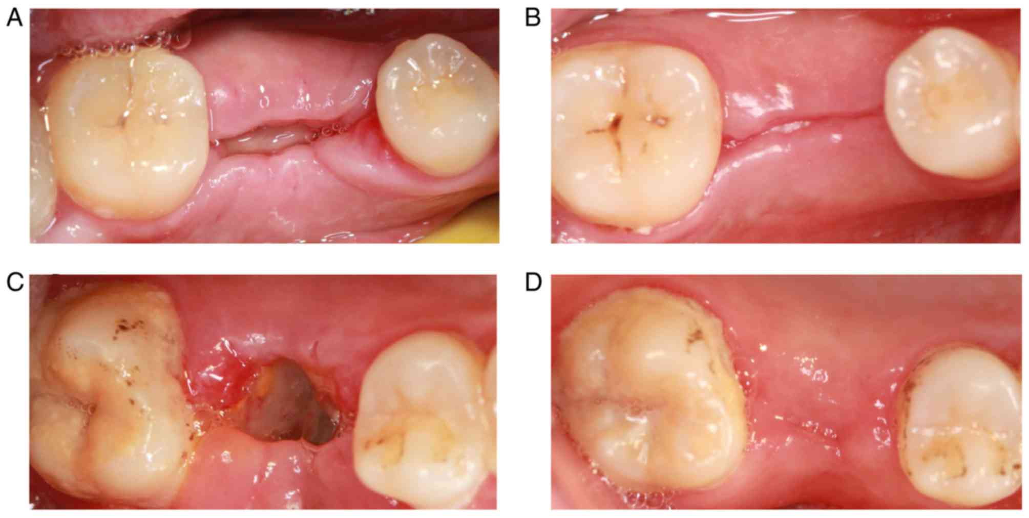 healed tooth extraction picture Clinical effect of platelet-rich fibrin on the preservation of the ...