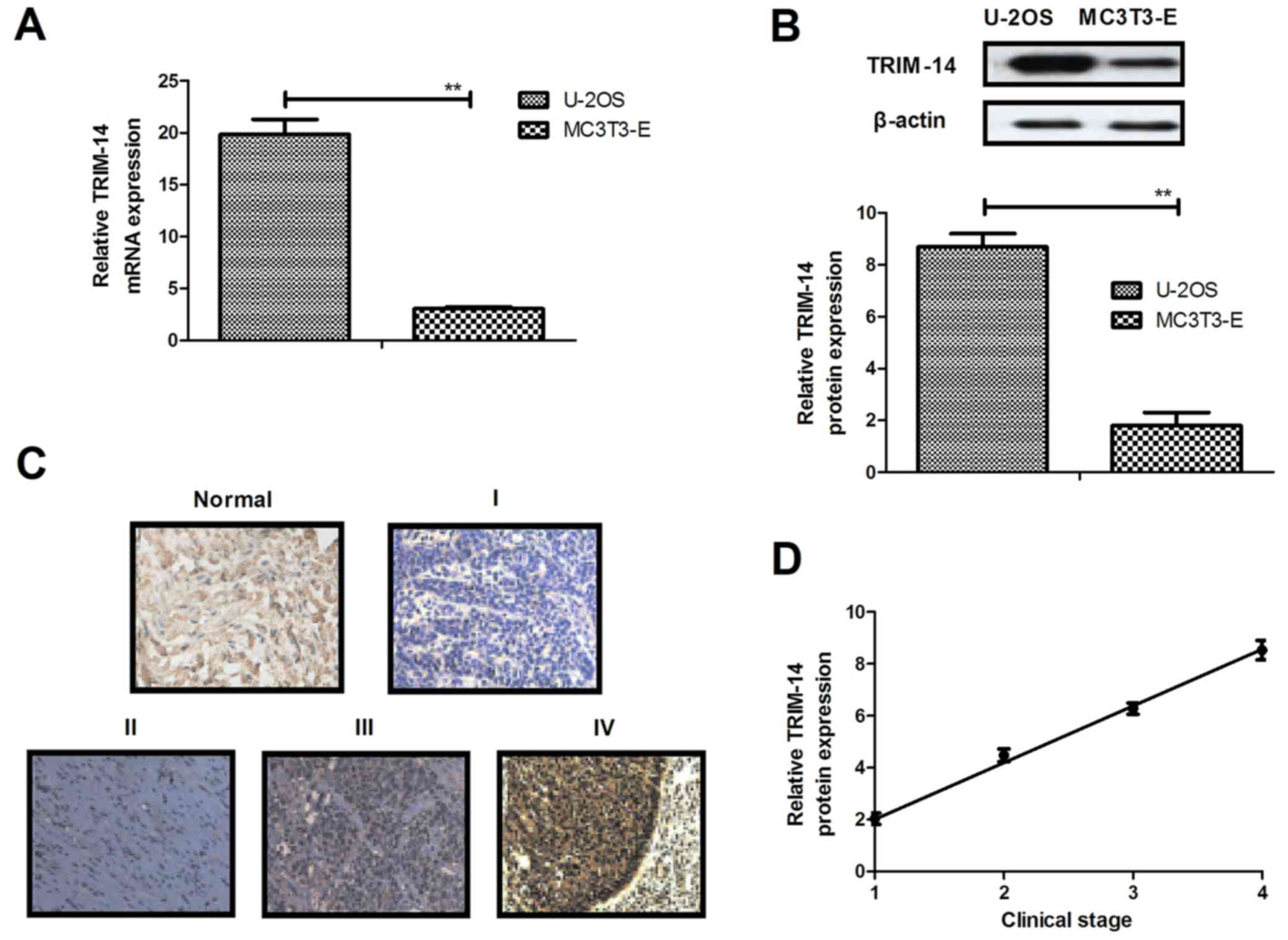 Target therapy of TRIM-14 inhibits osteosarcoma