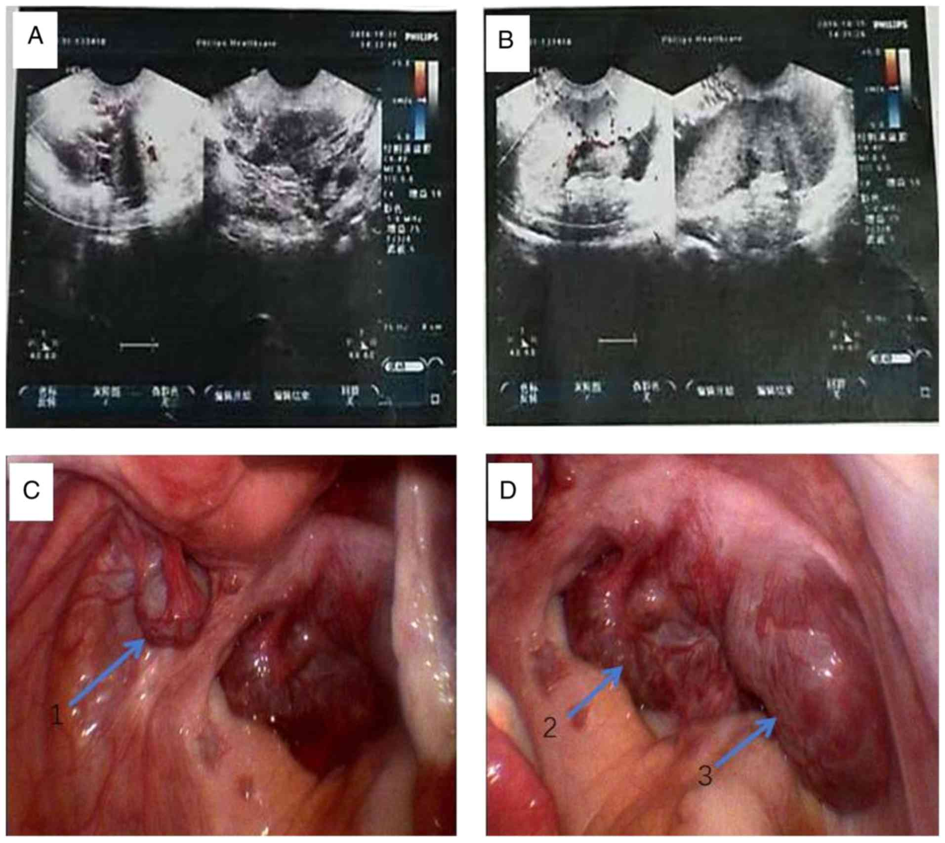 Multiple Pelvic Accessory Spleen Rare Case Report With Review Of