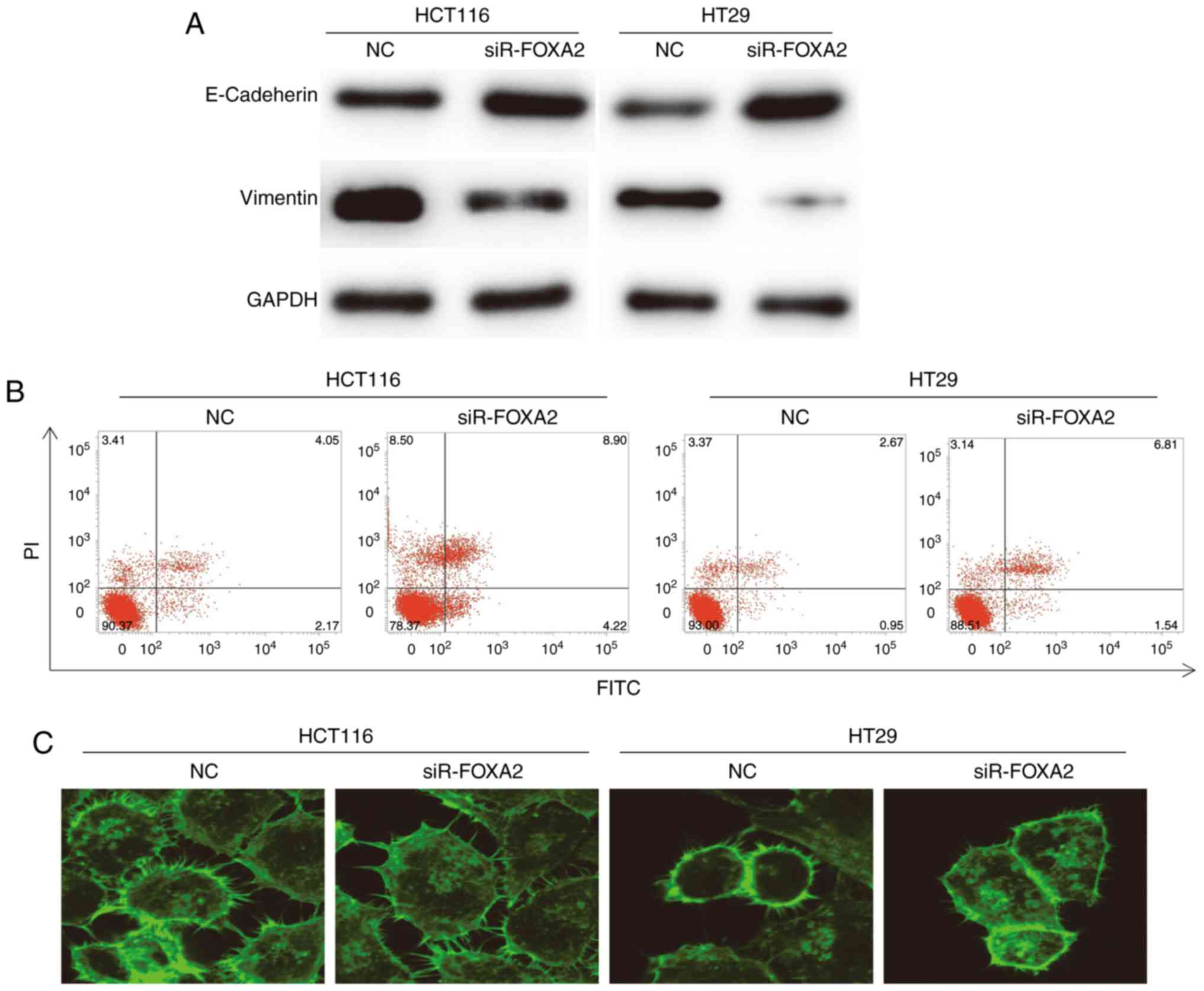 FOXA2 promotes the proliferation, migration and invasion