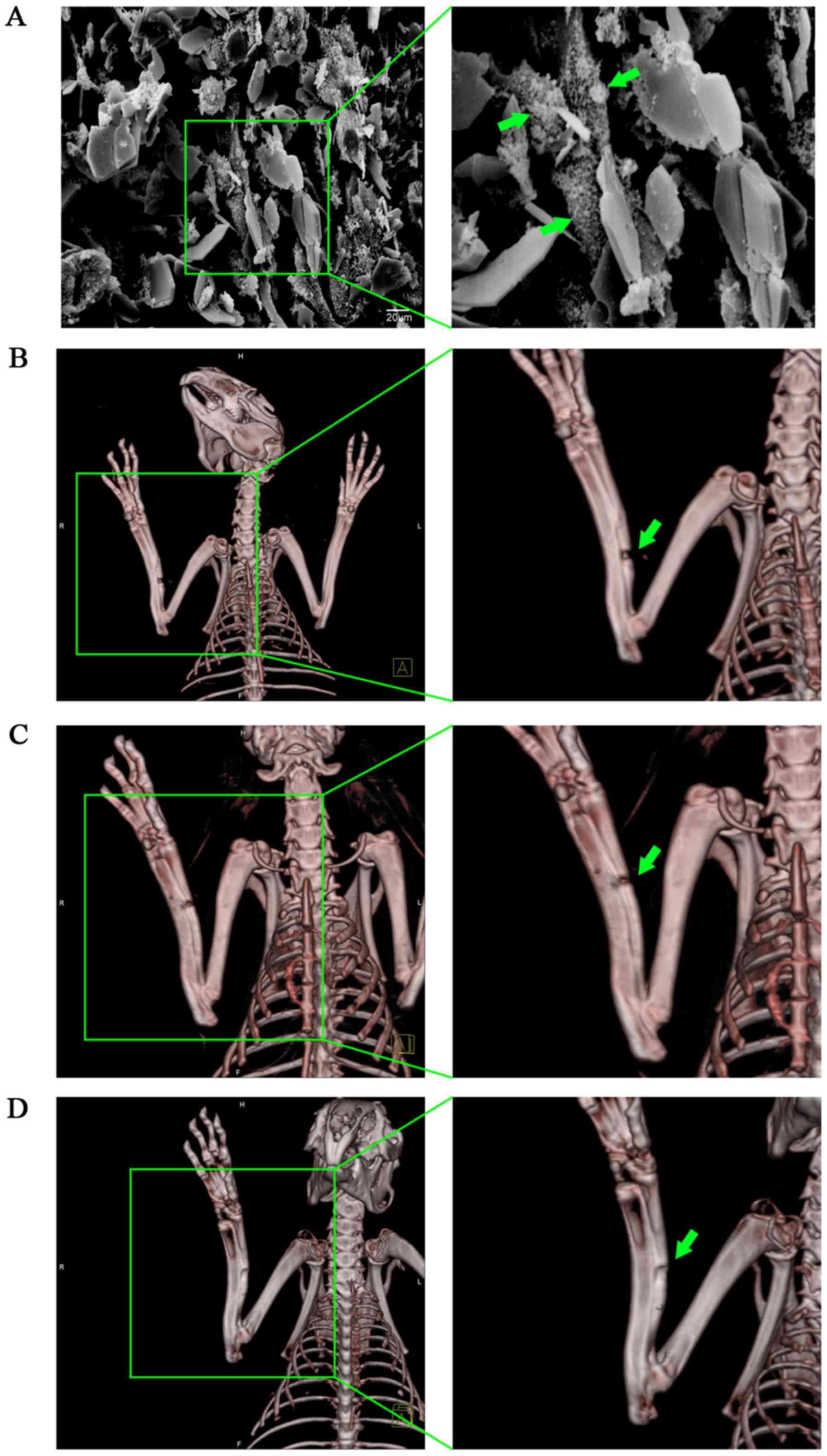 BMP7‑overexpressing bone marrow‑derived mesenchymal stem cells