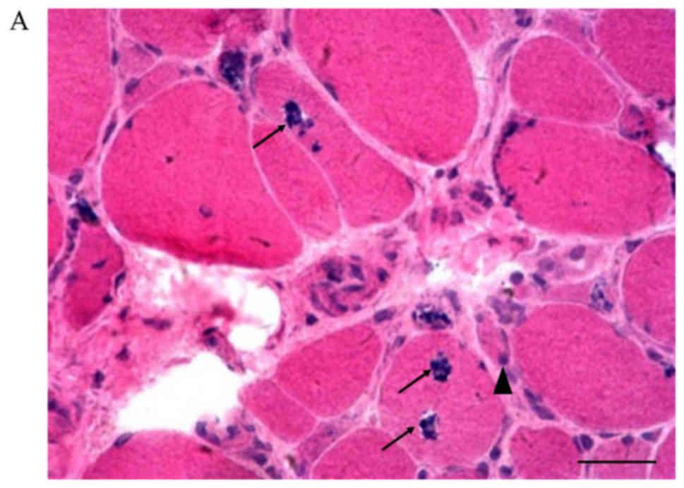 Distal myopathy with rimmed vacuoles: Spectrum of GNE gene