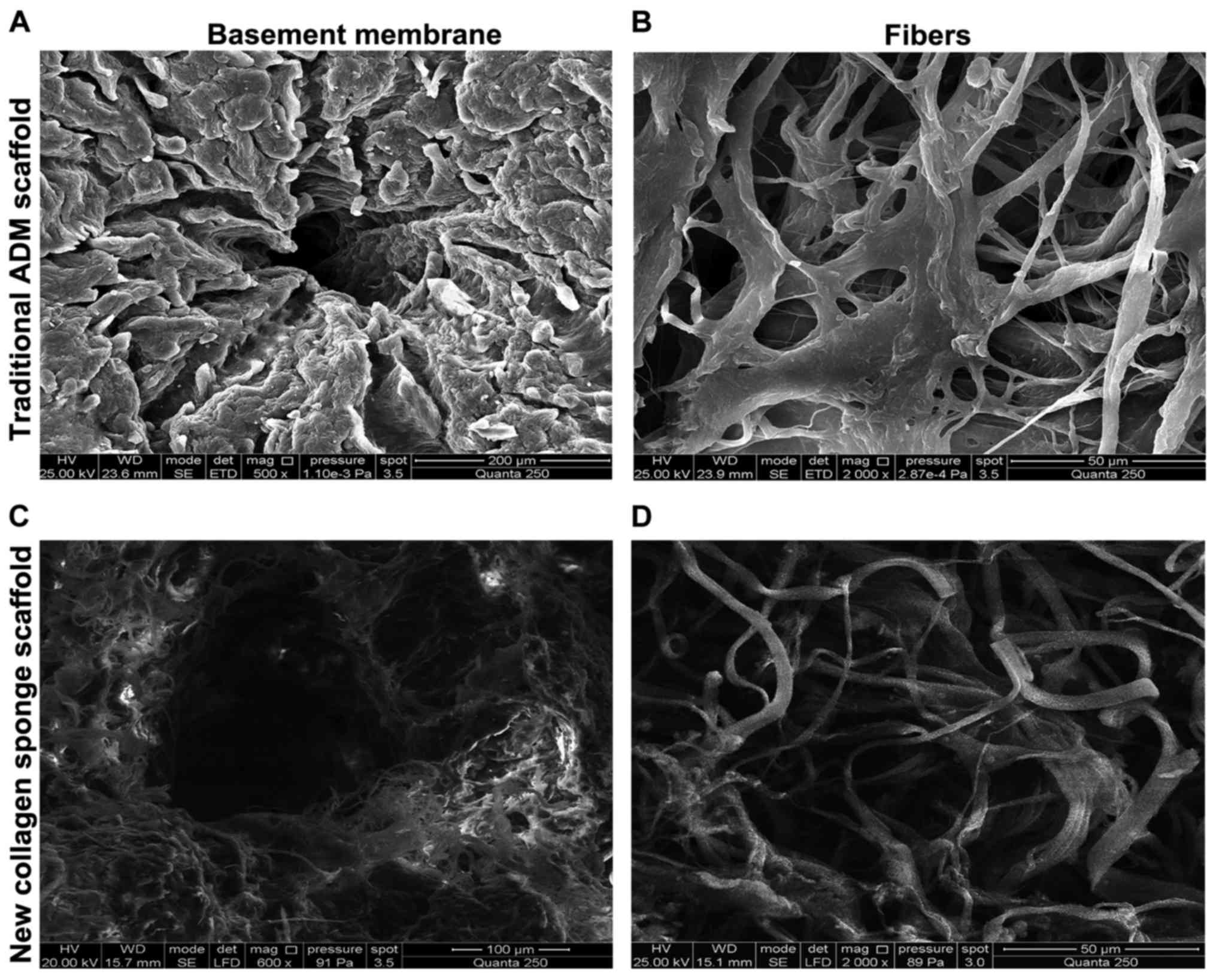 Experimental research on ADSCs-NCSS in wound repair