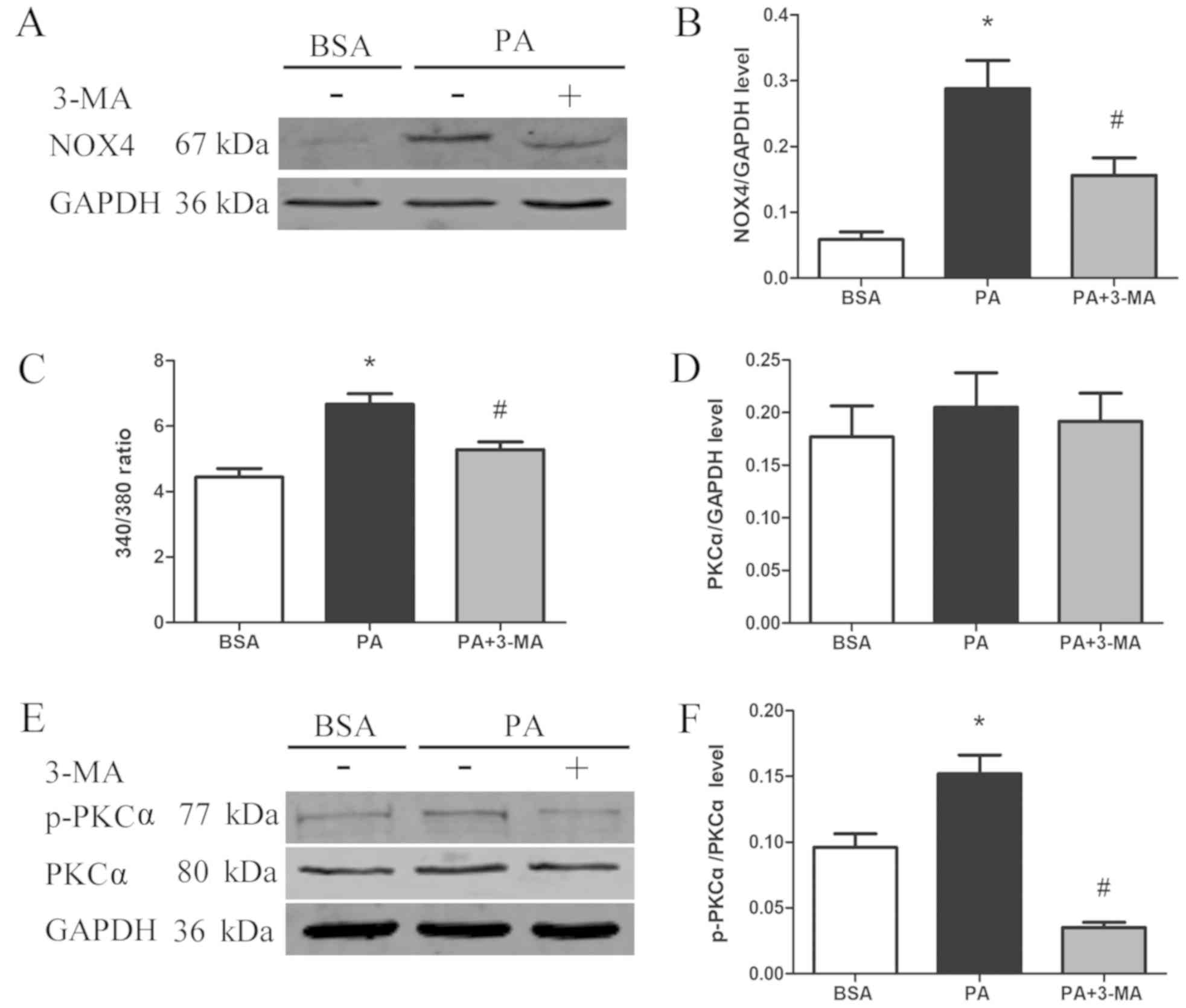 Palmitic acid‑induced autophagy increases reactive oxygen