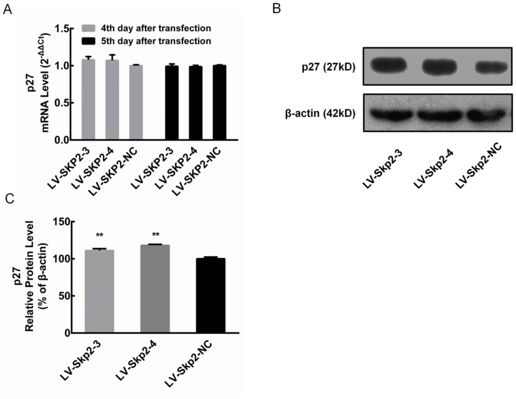 Effects of RNAi‑induced Skp2 inhibition on cell cycle