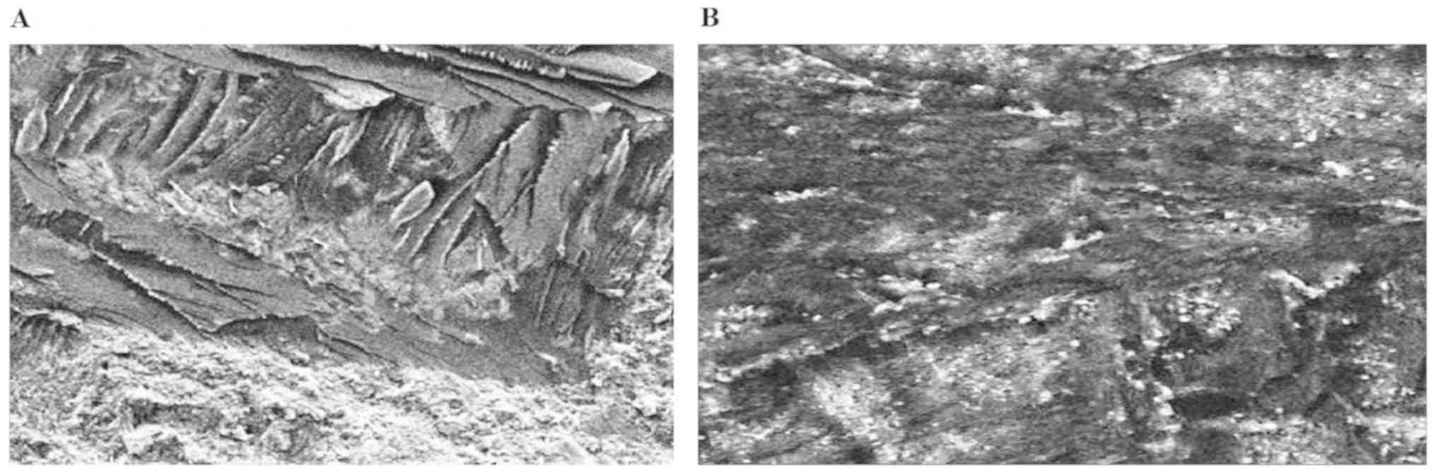 Effects of MDP‑based primers on shear bond strength between resin