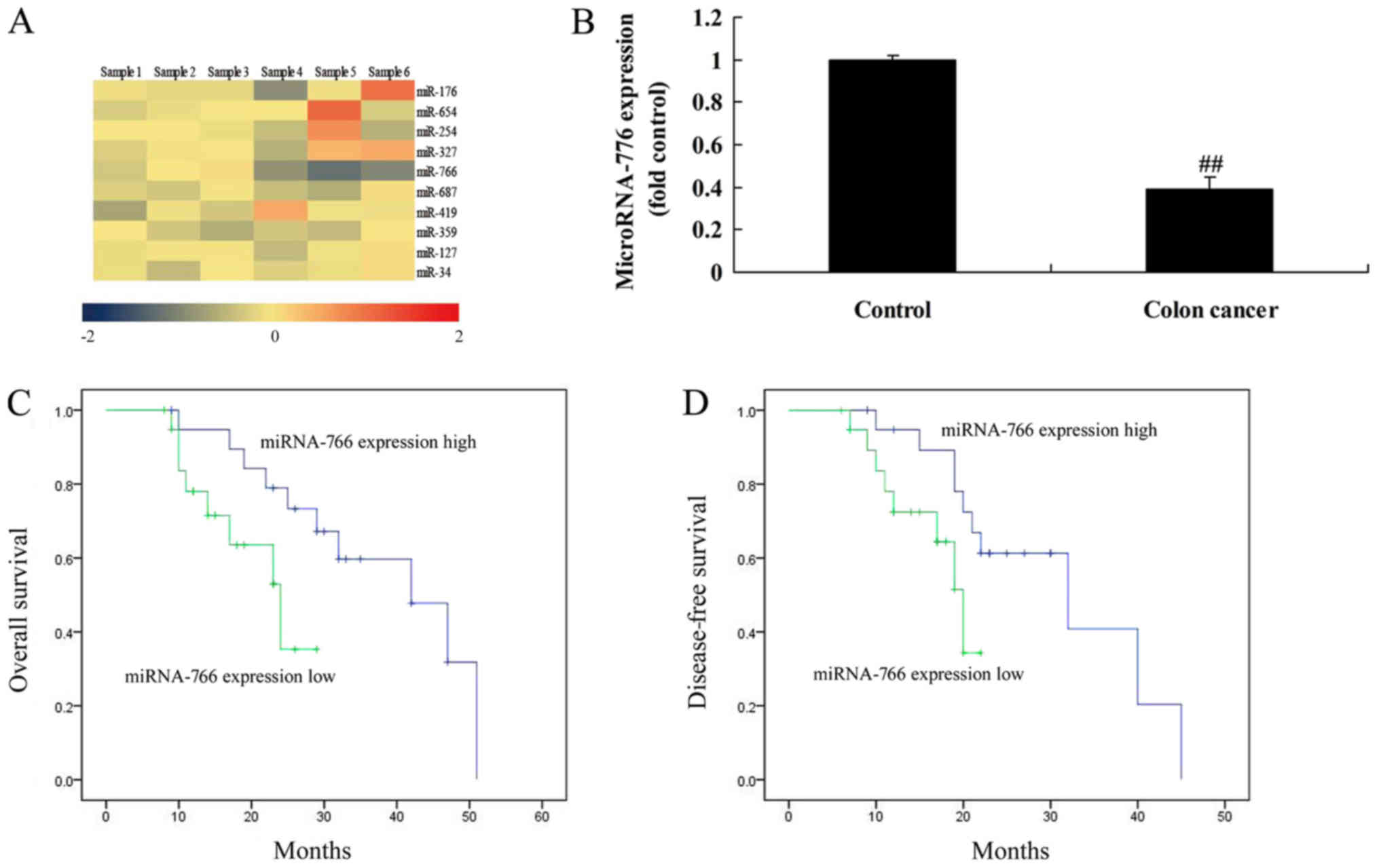 Mirna 766 Induces Apoptosis Of Human Colon Cancer Cells Through The P53 Bax Signaling Pathway By Mdm4