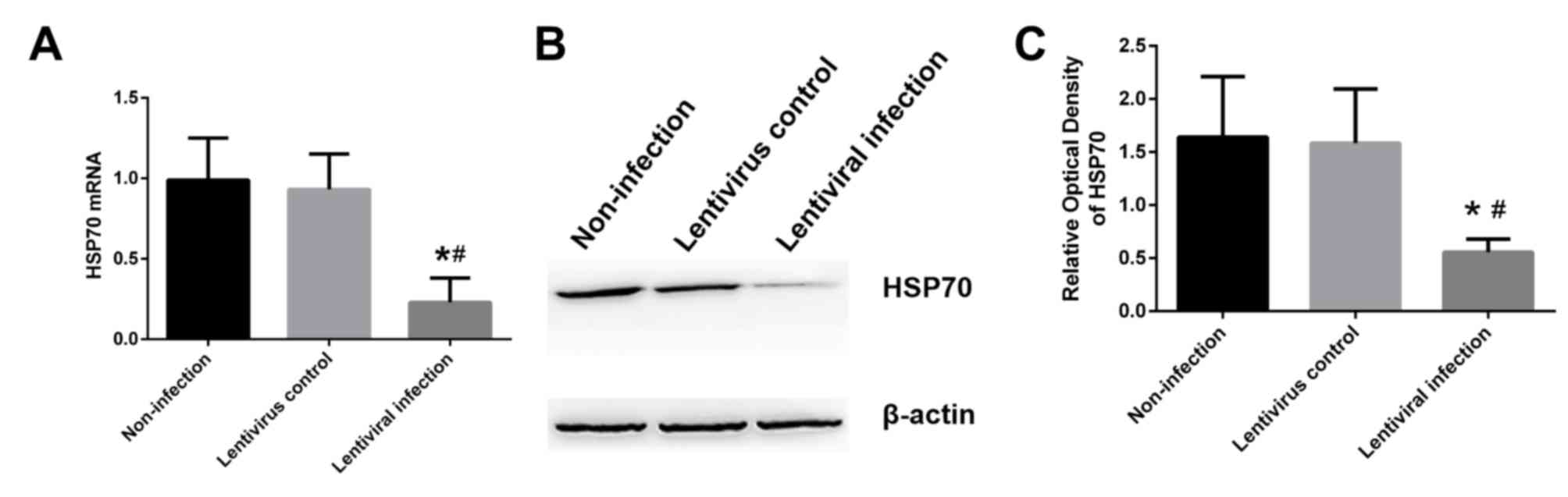 HSP70 silencing aggravates apoptosis induced by hypoxia