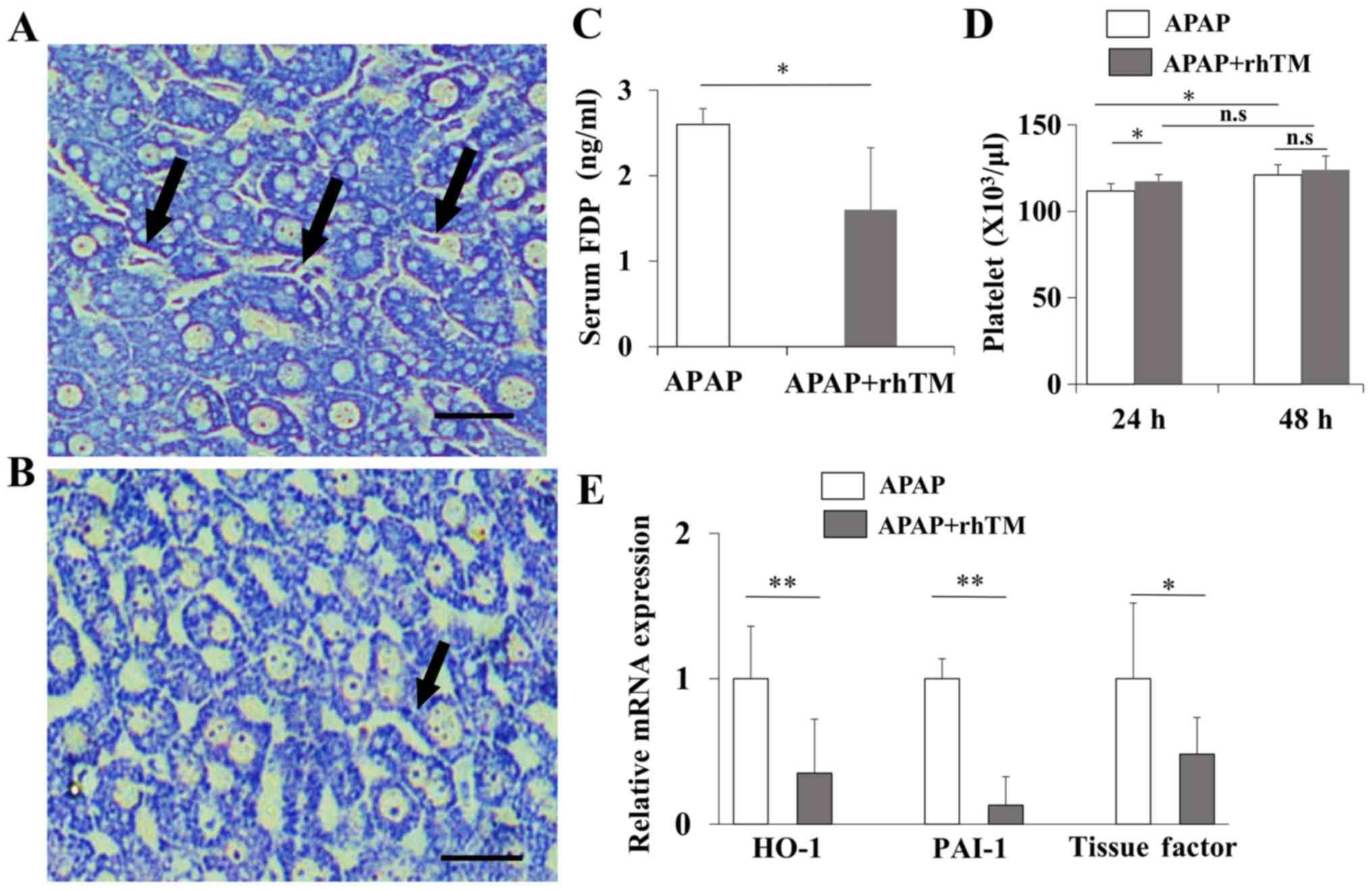 Recombinant human soluble thrombomodulin ameliorates