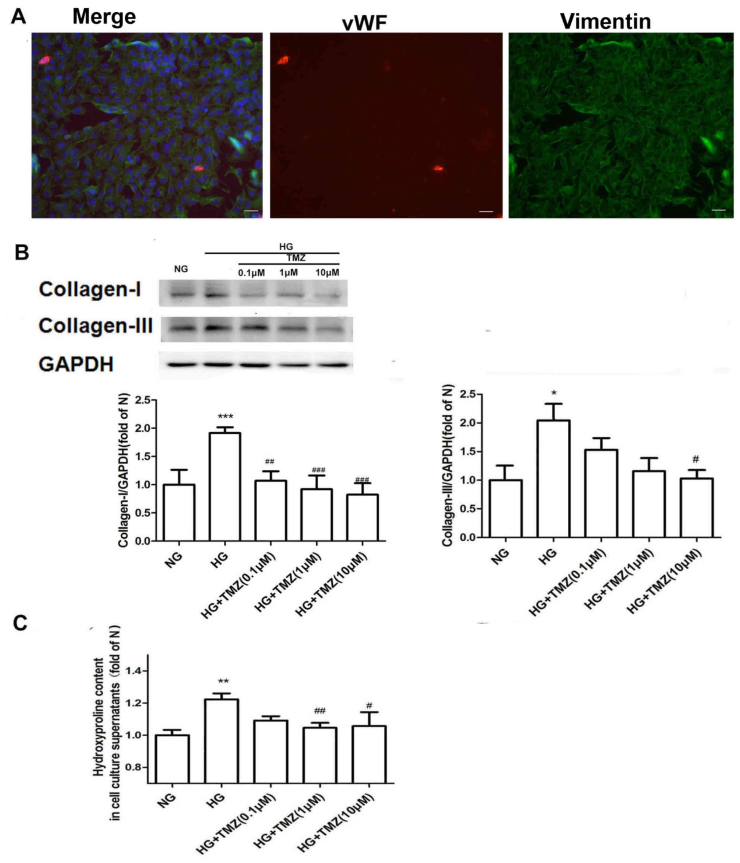 Trimetazidine inhibits cardiac fibrosis by reducing reactive