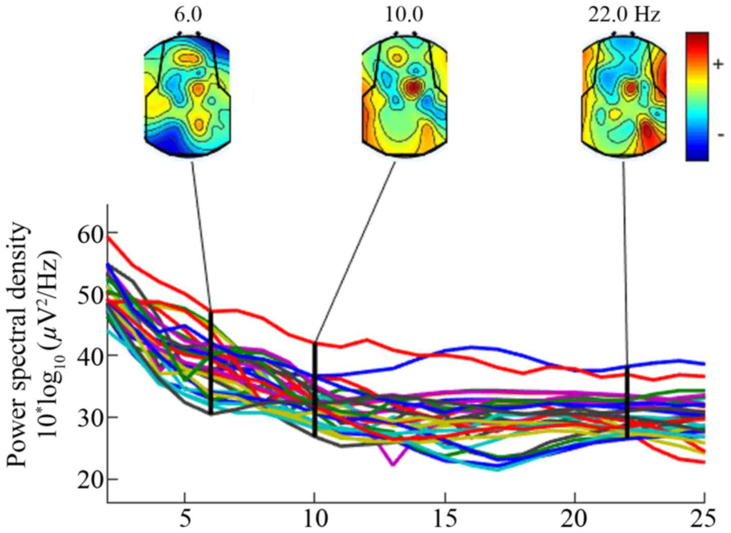 Activation of the primary motor cortex using fully ...