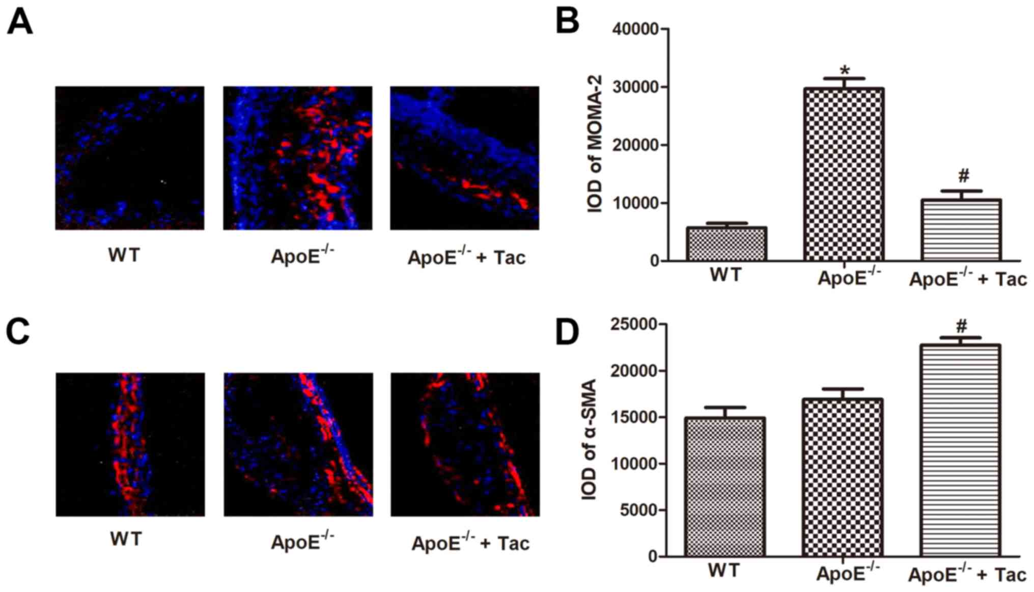 Plaque À Induction Pas Cher tacrolimus reduces atherosclerotic plaque formation in apoe