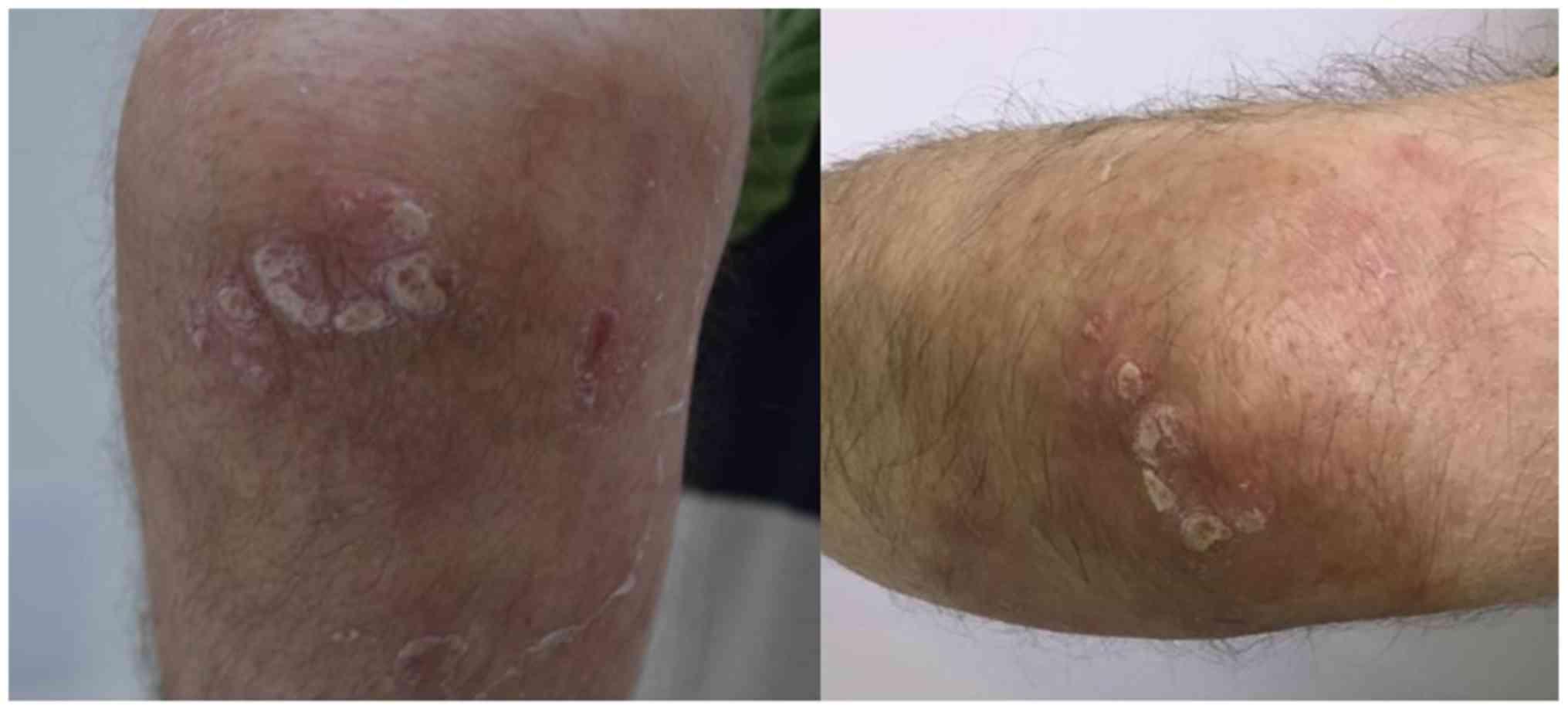 Laser dermatology | vrindex.hu