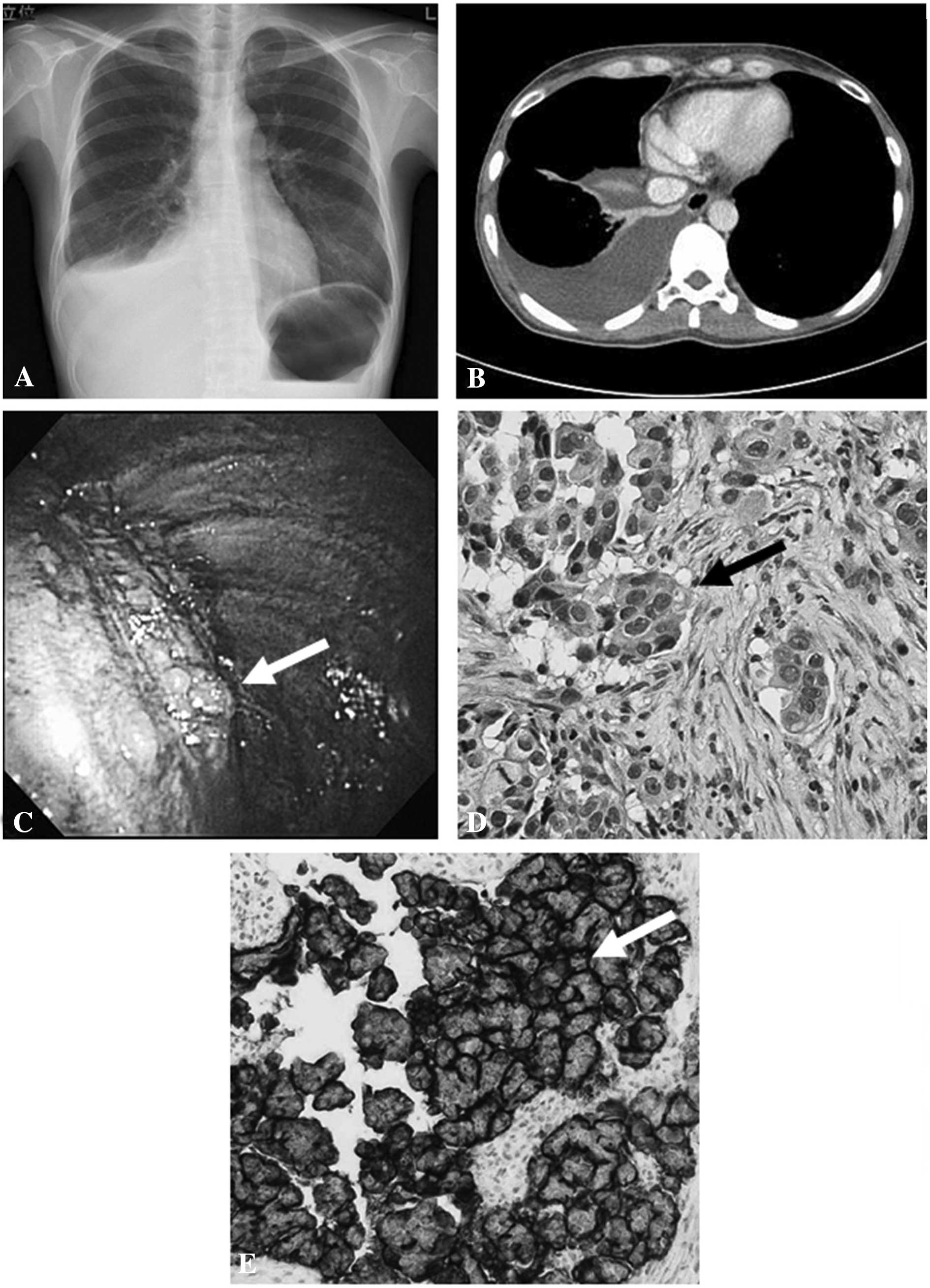 Diagnosis Of Ovarian Cancers Using Thoracoscopy Three Case Reports And Review Of The Literature