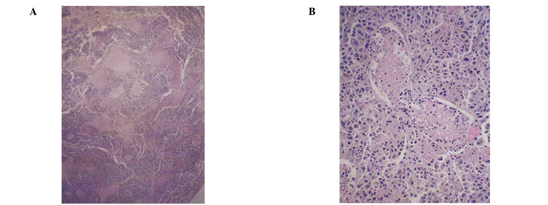 Suppression Of Metastasis Of Intratesticular Inoculation Of B16fo