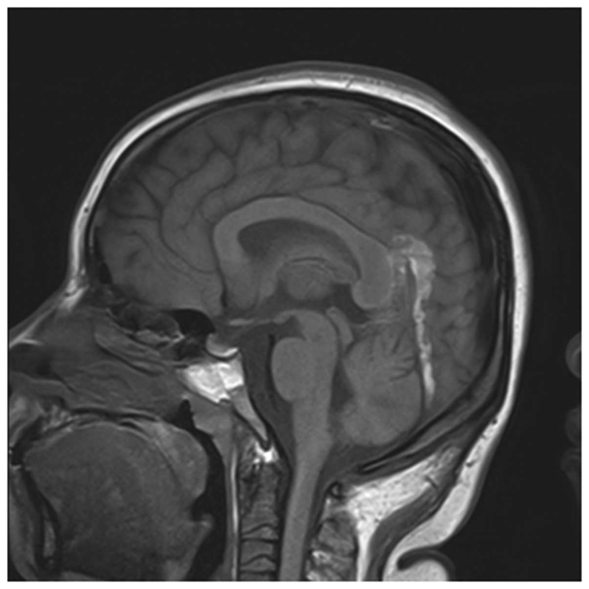 Early Imaging Characteristics Of 62 Cases Of Cerebral Venous Sinus