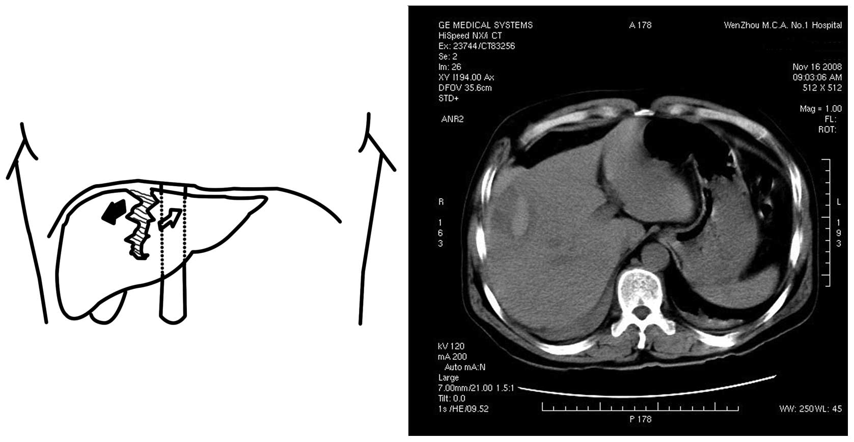 Mechanisms of blunt liver trauma patterns: An analysis of 53 cases